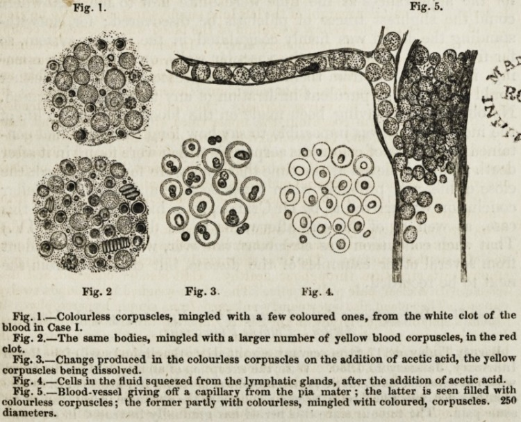 Image from Bennett of colorless corpuscules from the blood of John Menteith