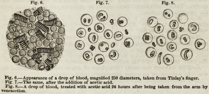 Image from Bennett of the appearance of a drop of blood taken from patient Barney Tinlay and subjected to various treatments.